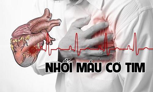 Các triệu chứng của nhồi máu cơ tim cấp tính