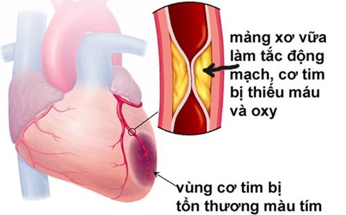 Nguyên nhân gây ra nhồi máu cơ tim cấp tính