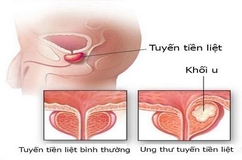 Nguyên nhân và các biến chứng của ung thư tuyến tiền liệt