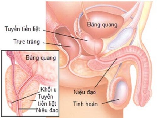 Phương pháp điều trị cho người bị ung thư tuyến tiền liệt