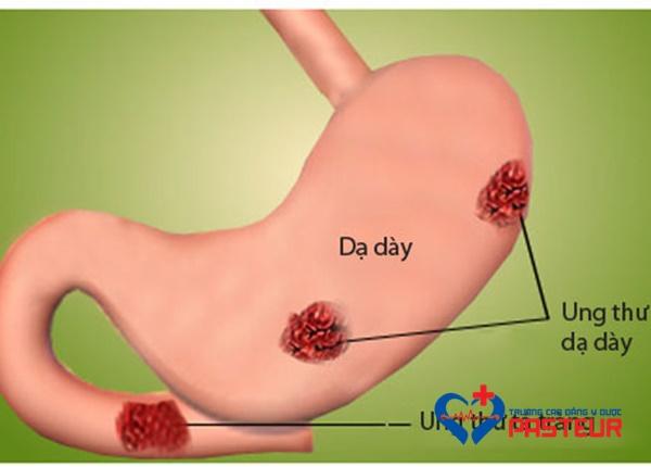 Điều trị đau dạ dày không phẫu thuật