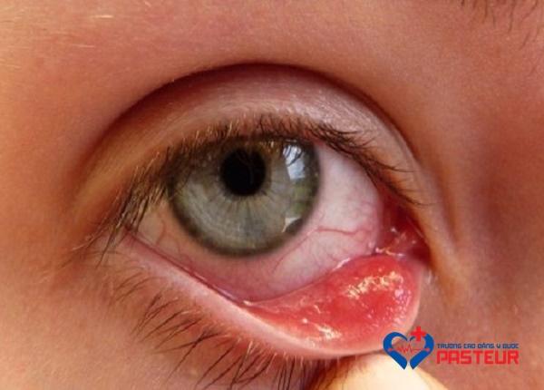 Bệnh đau mắt hột: Nguyên nhân, triệu chứng, phòng ngừa