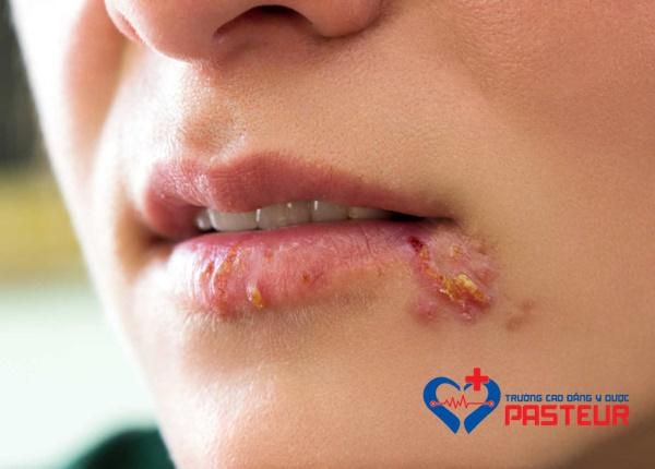 Bệnh herpes môi thường tự khỏi và có thể được điều trị tại nhà.