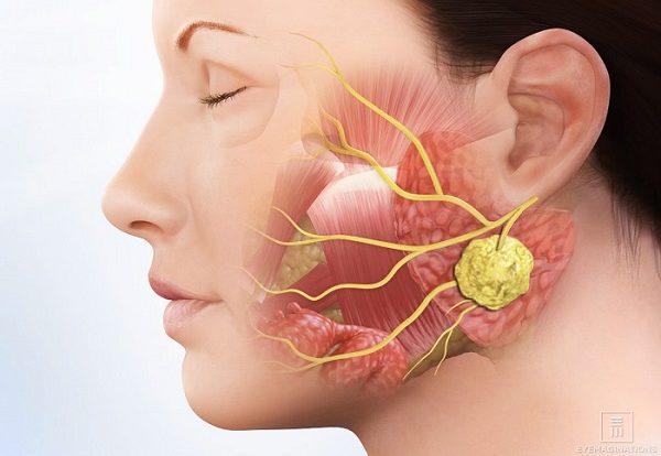 Viêm tuyến nước bọt mang tai đơn thuần