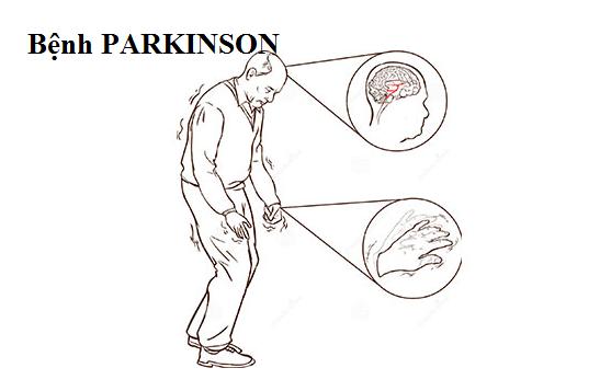 Biến chứng của bệnh Parkinson