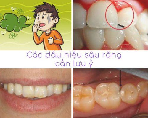 Dấu hiệu phát hiện tình trạng sâu răng