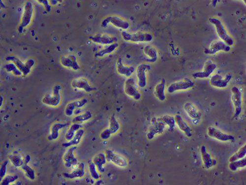 Nguyên nhân cơ thể bị nhiễm loại amip có thể ăn não