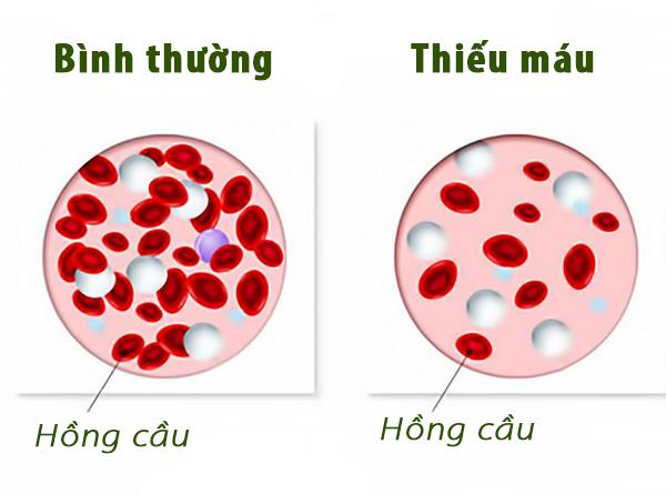 Nguyên nhân gây bệnh thiếu máu