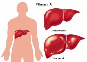 Bệnh lý viêm gan lây qua những đường nào