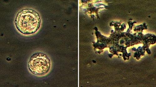 Phương pháp điều trị và phòng ngừa mắc phải amip naegleria