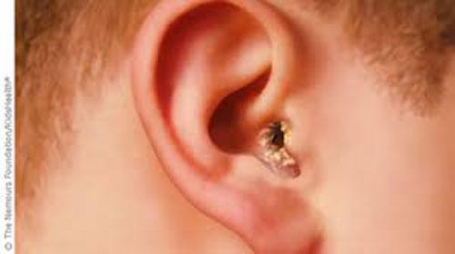 Triệu chứng của bệnh viêm tai ngoài