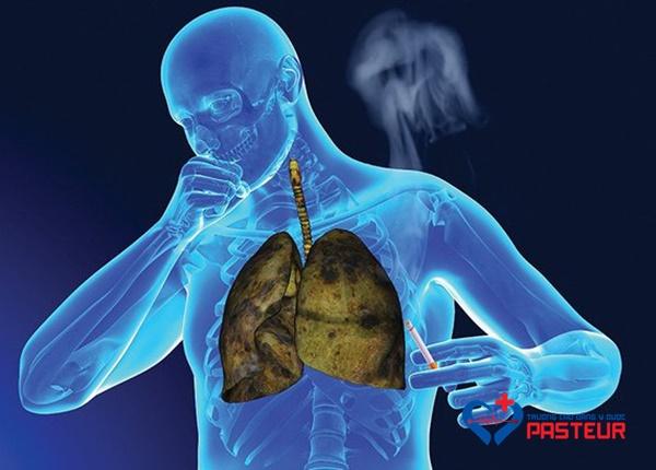 Dấu hiệu mắc bệnh ung thư phổi