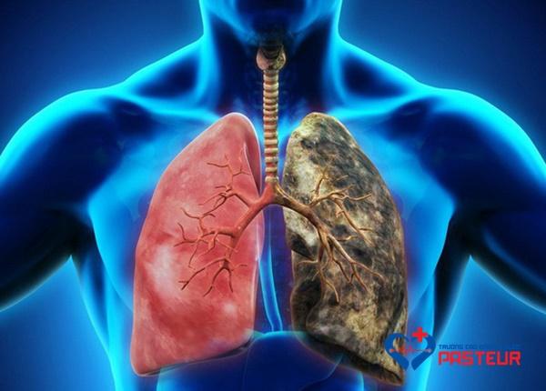 Bệnh ung thư phổi: Dấu hiệu, biến chứng và điều trịBệnh ung thư phổi: Dấu hiệu, biến chứng và điều trị