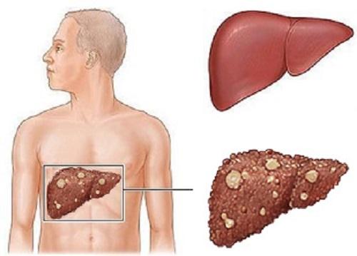 Các biện pháp phòng ngừa ung thư gan