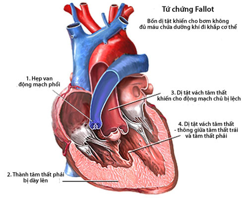 Các loại tim bẩm sinh thường gặp