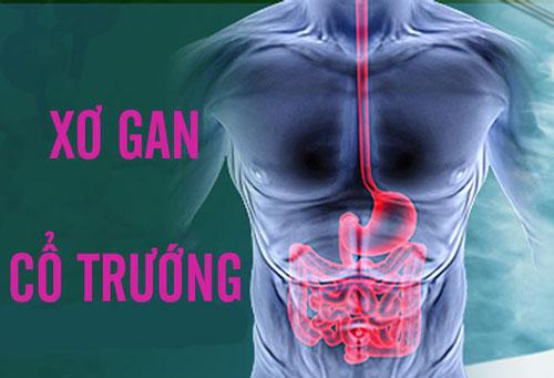 Dấu hiệu của bệnh xơ gan cổ trướng