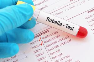 Tìm hiểu về xét nghiệm rubella