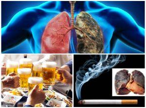Chế độ ăn tốt cho người ung thư phổi