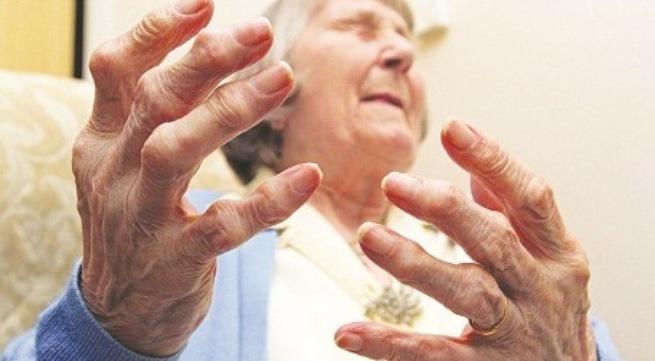 Viêm khớp dạng thấp thường gặp ở người cao tuổi