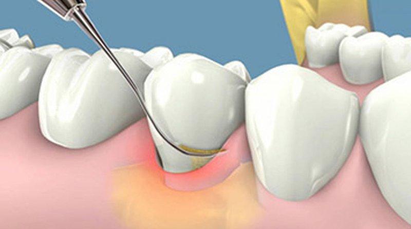 Lấy vôi răng 6 tháng 1 lần để phòng ngừa ngứa nướu